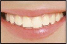 Orthodontic Braces in Bonita Springs, Marco Island, Fort Myers